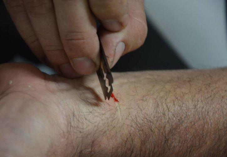 Una nueva moda ha surgido entre los adolescentes: consiste en cortarse la piel con un objeto afilado. (Gerardo Amaro/SIPSE)
