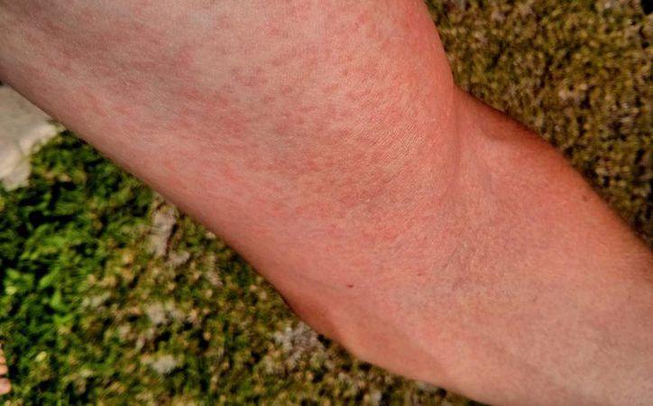 Las erupciones cutáneas son uno de los síntomas más característicos de la infección por virus del zika. (chrisduggleby.com)