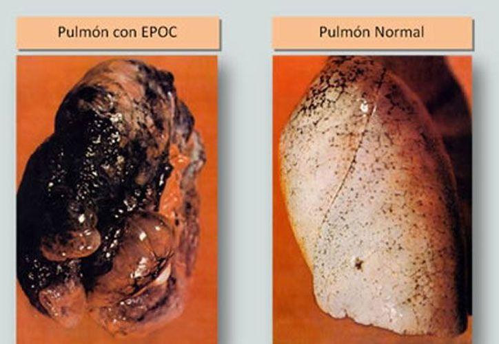 Gráfico que demuestra las consecuencias que puede provocar en los pulmones la Enfermedad Pulmonar Obstructiva Crónica. (masquemedicos.co)