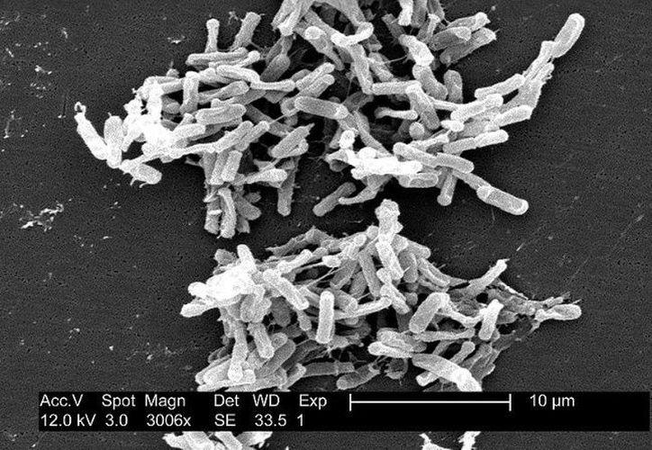 El trasplante de heces consiste en repoblar el intestino de una persona enferma con bacterias sanas. (Foto: Wikipedia)