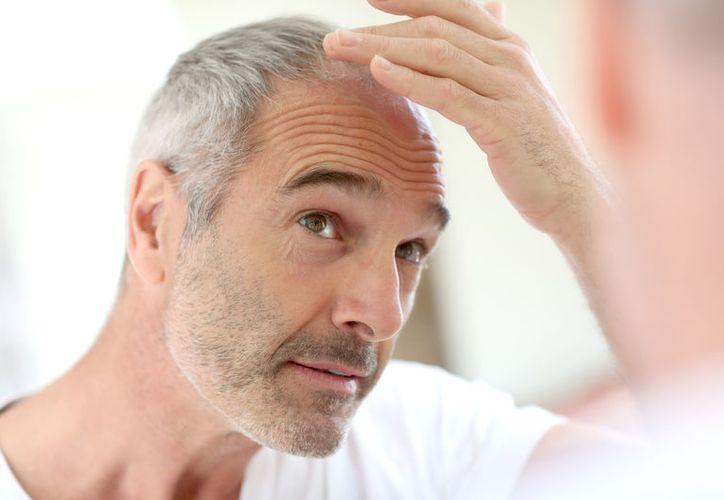 Medicamento para la osteoporosis podría curar la calvicie, dicen algunos especialistas. (Foto: Contexto)
