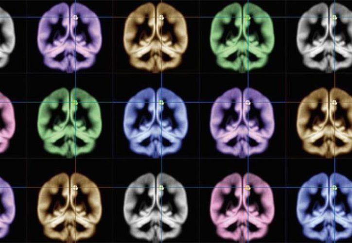 Científicos de la Universidad de Kioto han utilizado imágenes de resonancia magnética para encontrar la ubicación de la felicidad. (Kyoto University)
