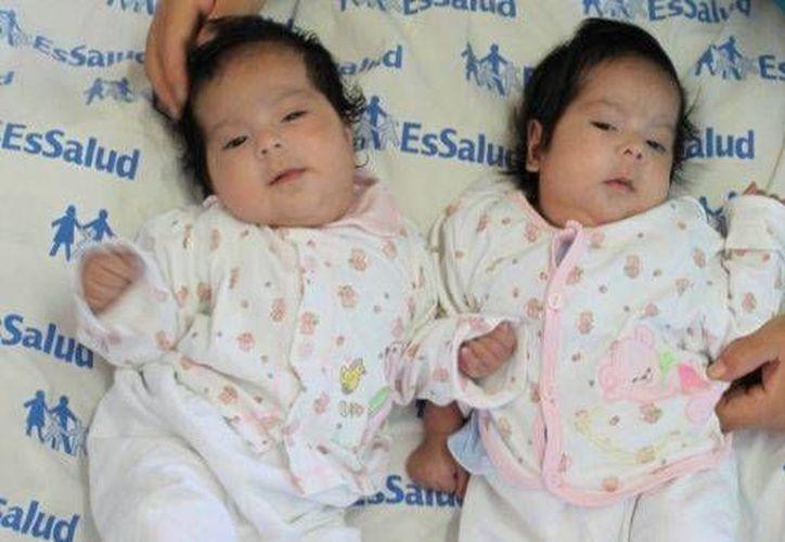 Las menores podrán desarrollar una vida normal con un hígado dividido que se irá regenerando. (peru21.pe)