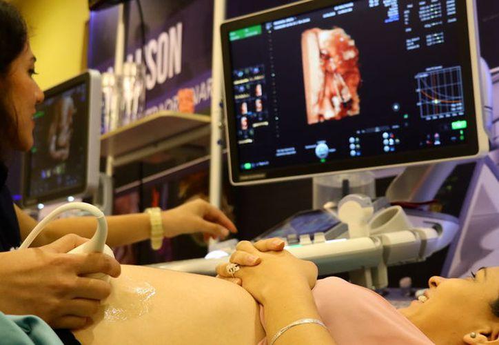 Los controles prenatales ayudan a detectar padecimientos en el feto. (Foto: Milenio Novedades)