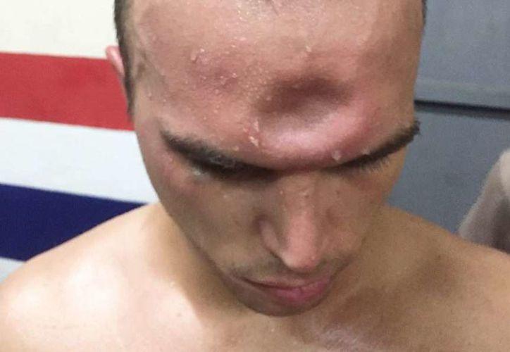 La foto de la lesión fue posteada en redes sociales por un amigo de Jonny Betts. (Foto: El Diario NY)