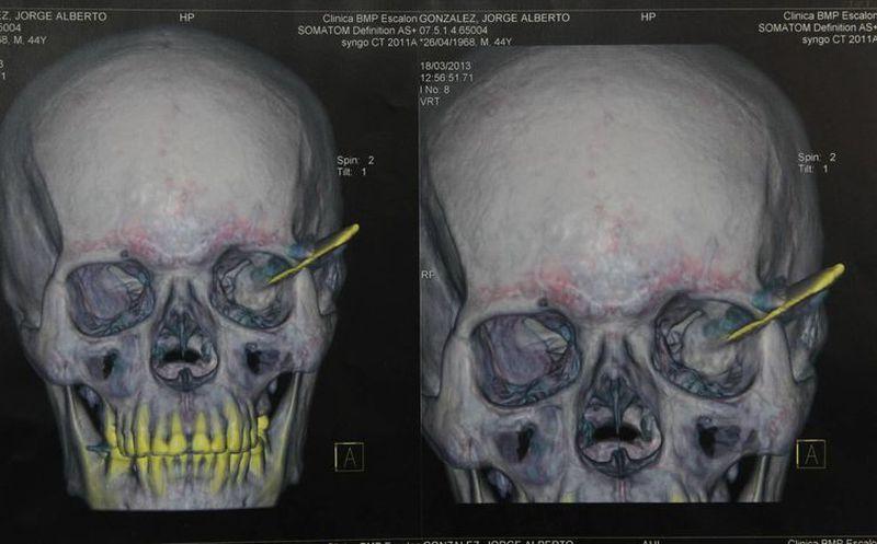 Vivió 18 años con un cuchillo en el cráneo | Noticias de México y el ...