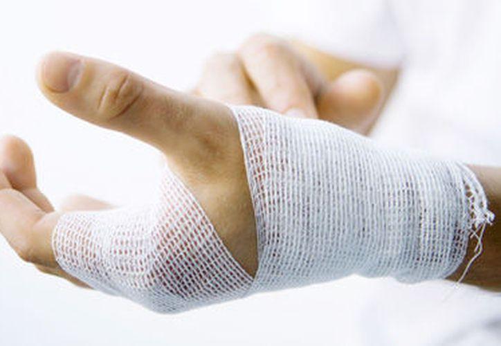 Después de estar esperando que alguien lo ayude una persona se detuvo y compró hielo para poner la mano. (Foto: Contexto/Internet).