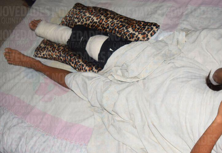 Una de las víctimas,la niña,  se quedará con secuelas de por vida en su movilidad. (Foto: Gustavo Villegas)