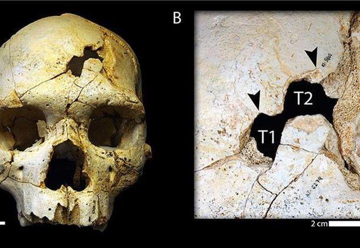 Investigadores resolvieron el primer caso de asesinato documentado de la historia, que ocurrió hace 430 mil años tras haber investigado un cráneo encontrado en la Sima de los Huesos de Atapuerca, España. Imagen de la reconstrucción virtual del cráneo encontrado. (plos.org/CC BY 4.0)
