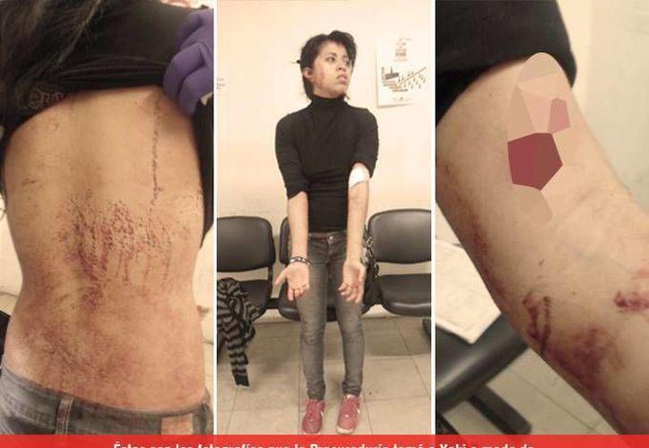 La defensa de Yakiri asegura que el MP no valoró el certificado médico de las heridas que presentó. (Milenio)