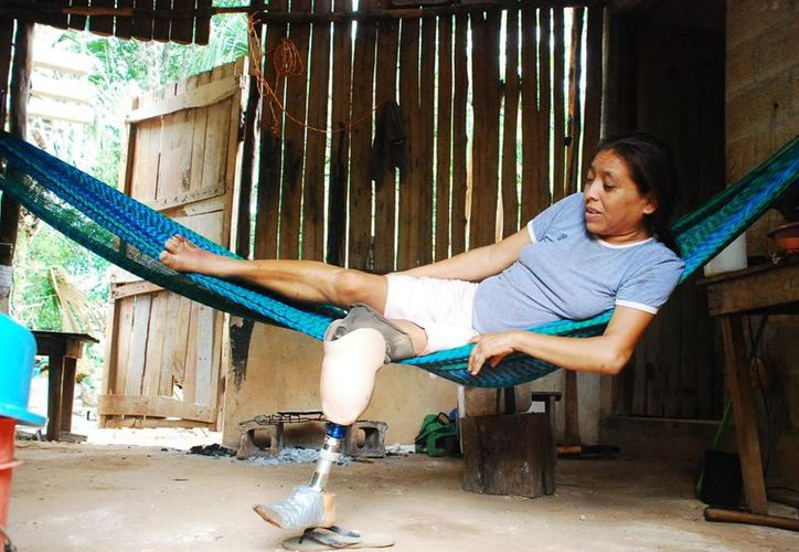 Hace cuatro años perdió a su madre, un año después perdió un pie, su pareja sentimental la abandonó y ahora sufre de una infección en el otro pie. (Tony Blanco/SIPSE)