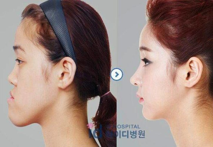 """Fotografías de uso editorial facilitadas por el ID Hospital de Seúl, del antes y el después de Bae So-young, la joven de aspecto masculino transformada en """"princesa"""". (EFE)"""