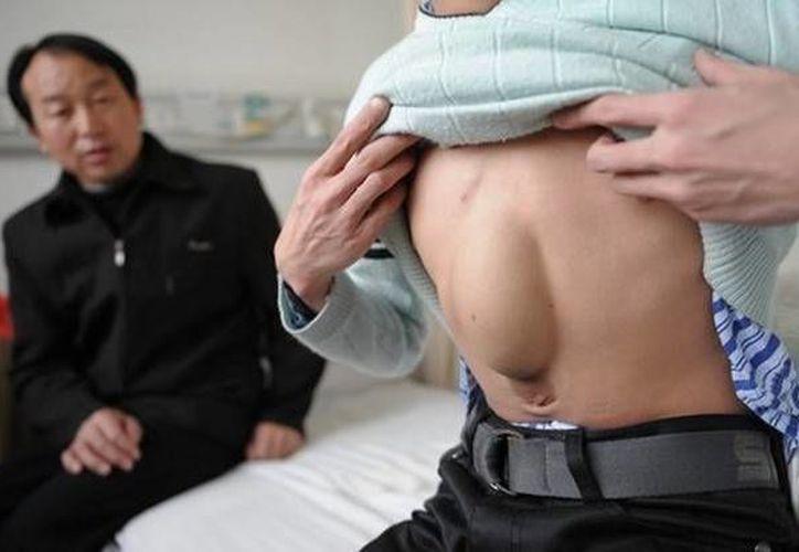 Al nacer,  los médicos le dieron pocas esperanzas de vida, ya que su sobresaliente corazón tenía defectos y era vulnerable a las lesiones. (papilot.pl)