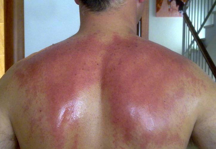 Las posibilidades de padecer cáncer de piel aumentan en primavera debido a que aumenta la intensidad de los rayos solares. (hondudiario.com)