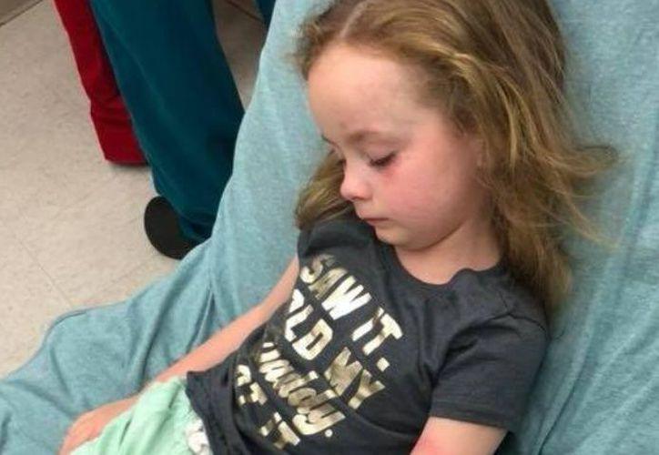 La menor tenía una garrapata en la cabeza, por lo que su madre la llevó de inmediato al hospital. (Foto de Facebook: Jessica Griffin)