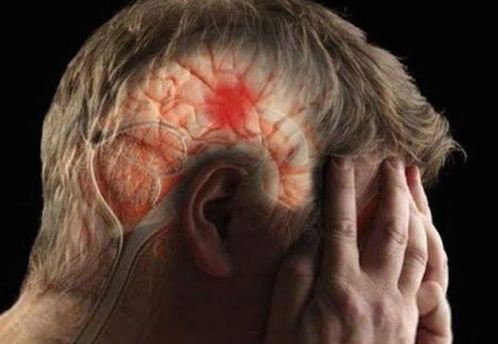 Balbuceos, confusión mental o dificultad para hablar, son síntomas de que está ocurriendo un derrame cerebral o embolia. (Contexto/Internet)