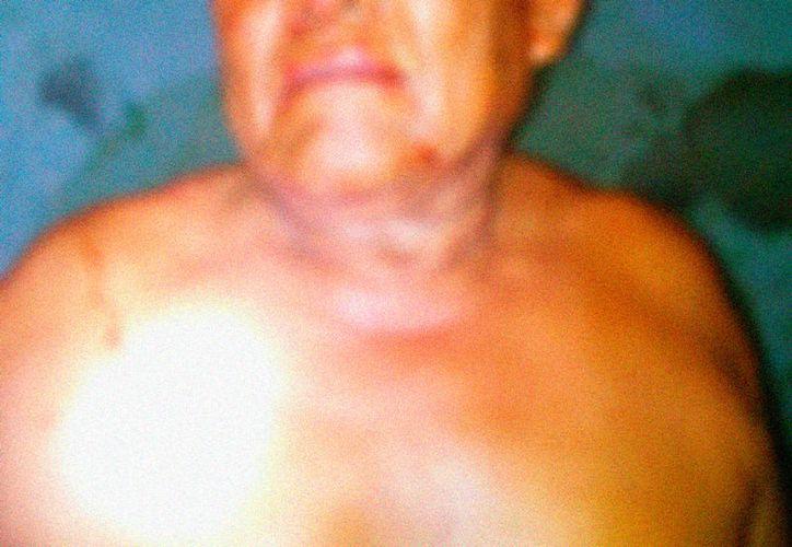 Liberato atacó a su esposa: le arrancó, de una mordida, tres dedos.  (SIPSE)