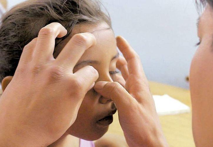 Se privilegia la atención a los niños, ya que el correcto crecimiento del globo ocular tiene relación directa con el desarrollo del resto de la cara. (Milenio)
