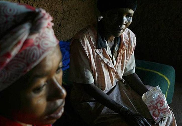 El número de casos de VIH-2 es mucho menor al del VIH, pero ya se está expandiendo principalmente en África. (RT)
