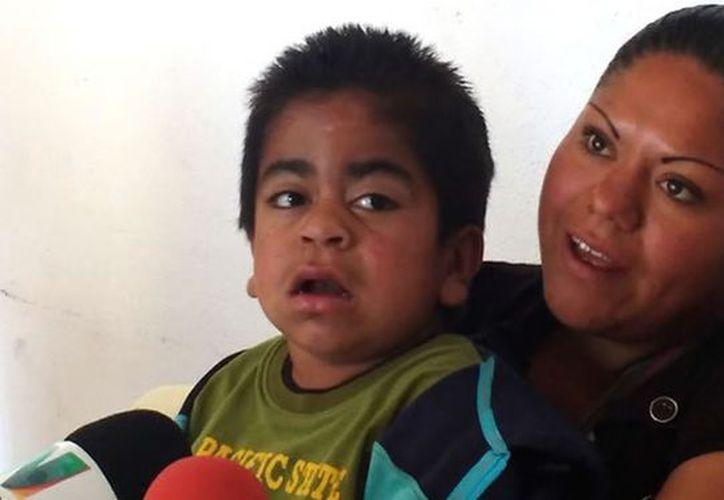 El síndrome de Hunter, unas de las enfermedades que desconocemos los yucatecos. (Foto: contexto/Internet)