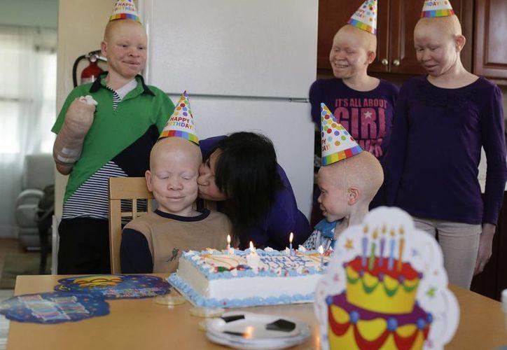 Los niños atacados en Tanzania por ser albinos fueron llevados a EU para ser tratados. Elissa Montanti da un beso a Mwigulu Magesa durante la celebración de su cumpleaños. (Agencias)