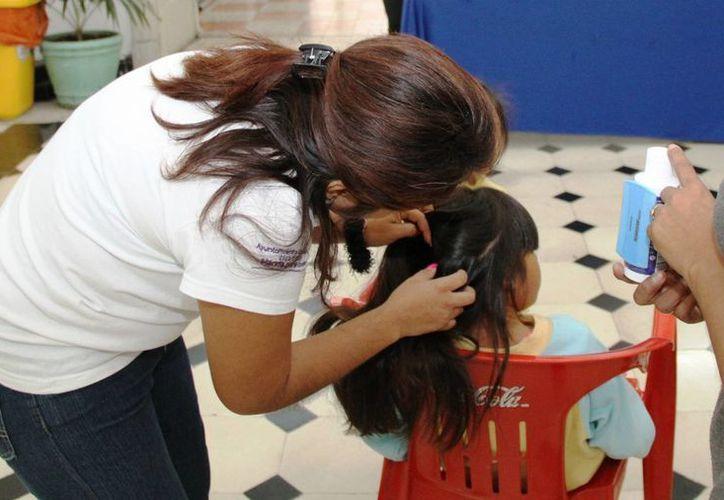 Los piojos afectan principalmente a niños. (SIPSE)