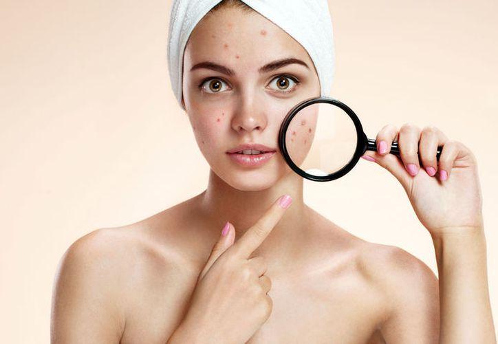 Hacer ejercicio ayuda a controlar las impurezas de la piel. (Foto: Contexto)