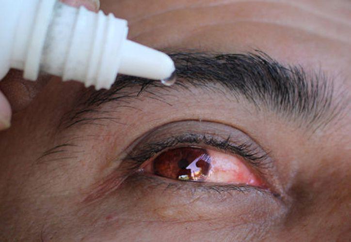 Se pronostica que en el transcurso del mes haya un repunte de casos de conjuntivitis. (Foto: Contexto)
