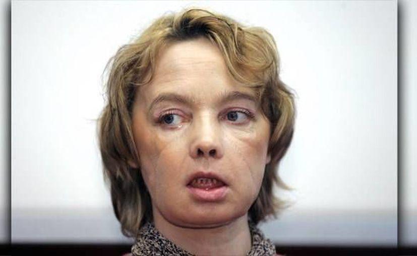 Isabelle Dinoire fue operada hace 11 años en el hospital CHU de Amiens, norte de Franbcia. (Archivo/AP)