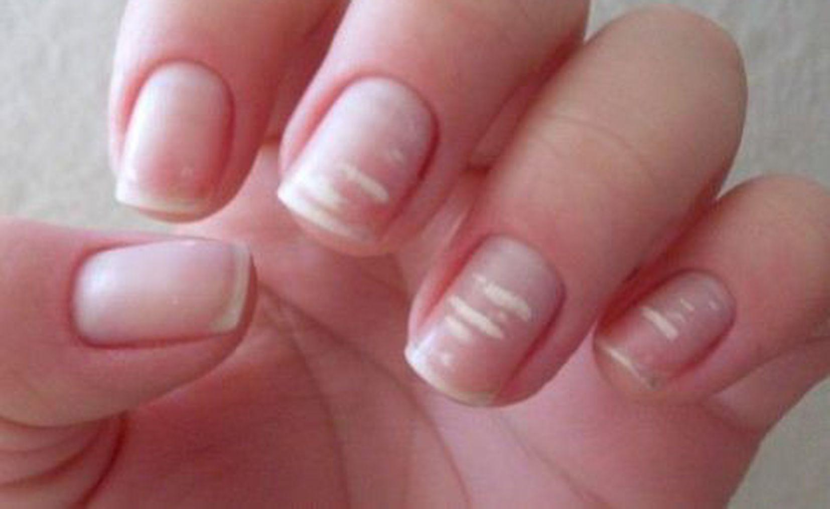manchas blancas en las manos
