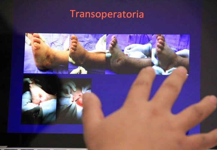 Aunque el tratamiento tardó dos años, Julieta salvó la extremidad inferior que estaba muy dañada. (José Acosta/SIPSE)