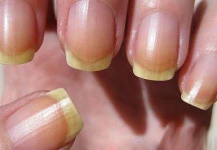 Algunas características de las uñas pueden revelar algún padecimiento, como el cambio de color. (Contexto/Internet)