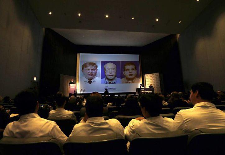 Médicos observan en una pantalla el rostro de exbombero Patrick Hardison, antes y después de su accidente, y después de su trasplante facial. (EFE)