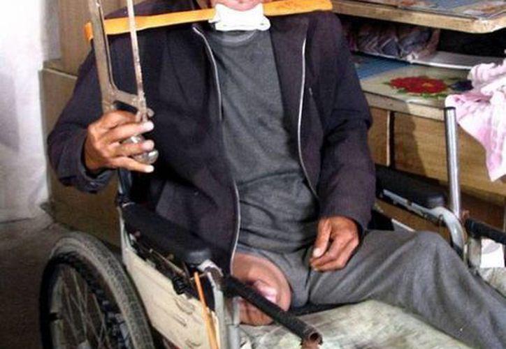 Zheng Yanliang utilizó una sierra metálica y un cuchillo pequeño para amputarse la pierna mientras mordía un pedazo de madera. (independent.co.uk)