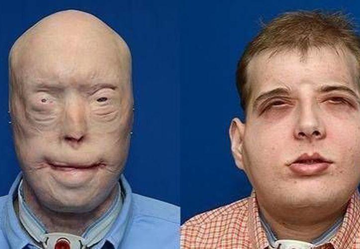 Antes y después de Patrick Hardison. (abc.com)