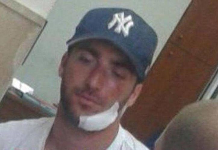 Así le quedó la cara argentino Gonzalo Higuaín después de golpearse la cara con una piedra en la Isla de Capri. (Twitter)