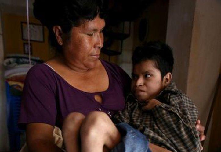 Catalina González Rosas y su hijo de 18 años, Ezequiel González González, quien padece retraso cerebral y deformaciones en su cuerpo debido a las aguas contaminadas de las comunidades de San Pedro Itzicán y Agua caliente, en Jalisco. (EFE)