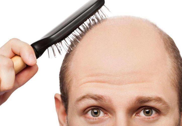 La calvicie masculina afecta, aproximadamente, al 80 por ciento de los varones a los 80 años. Imagen de contexto. (europapress.es)
