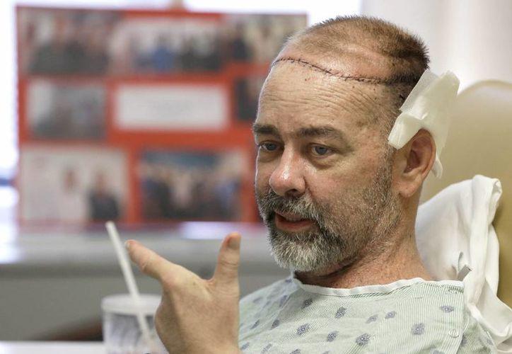 Médicos del Hospital Metodista de Houston y del Centro de Cáncer MD Anderson de la Universidad de Texas, realizaron con éxito el primer trasplante de cráneo y cuero cabelludo en el mundo. Fotografía de Jim Boysen, de 55 años, durante su recuperación. (AP)