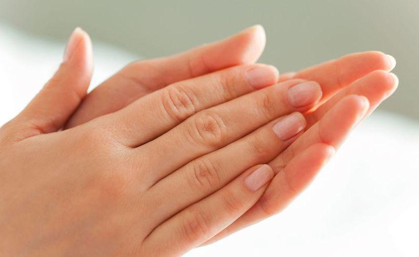 La hiperhidrosis es una sudoración excesiva, especialmente en los pies y las manos. (Foto: Contexto/Internet)