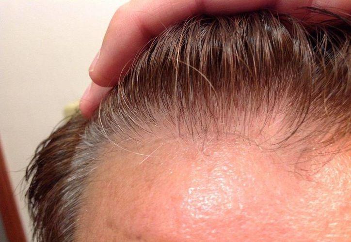El estudio aplicó los mismos métodos de tratamiento para el vitíligo. (Agencias)