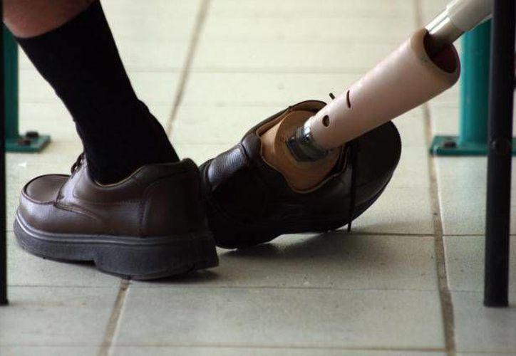 El Día Mundial de la Discapacidad se conmemora el 3 de diciembre, En la caminata de Huellas de Ángeles, estarán presentes 23 asociaciones civiles. (Archivo SIPSE)
