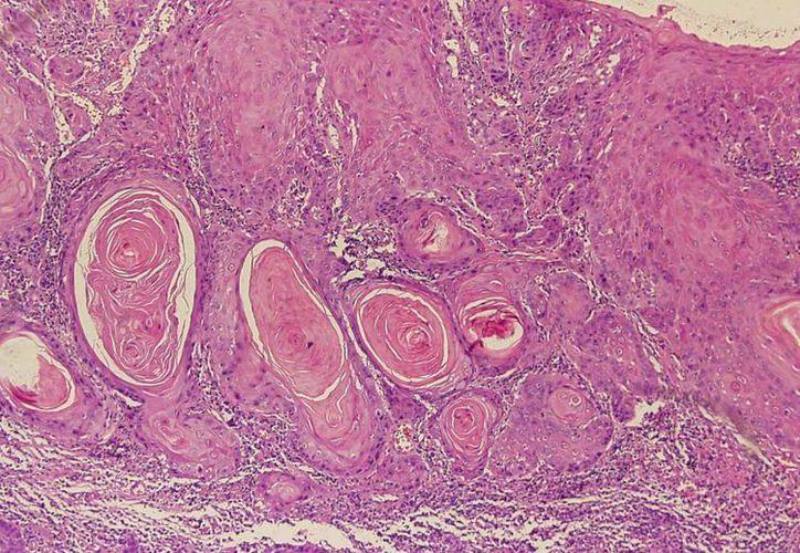 Los malos hábitos siguen siendo factor preponderante en la incidencia del cáncer. En la imagen, el tejido infectado de una mucosa estomacal. (umayor.cl)