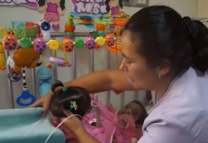 Graciela Esmeralda y Esmeralda Angely Martínez nacieron el 10 de agosto en un hospital de Jalapa. (El Debate)