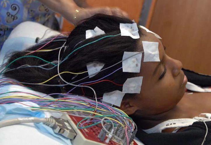 Más de 20 mil yucatecos padecen la enfermedad de la epilepsia. (Foto de SIPSE)