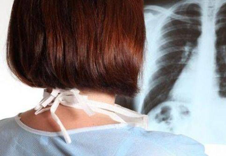 Especialista advierte que no solo el hábito de fumar es causa del cáncer de pulmón, pues también están otros factores, como el envejecimiento. (SIPSE)