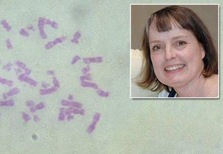 La autora principal del estudio es Jeanne B. Lawrence, profesora de biología celular y del desarrollo en la Universidad de Massachusetts. (umassmed.edu)