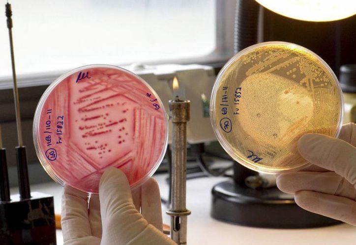 Una investigadora analiza muestras de vegetales en el Laboratorio Español de Referencia de E. coli, con base en la Facultad de Veterinaria de Lugo. (EFE)