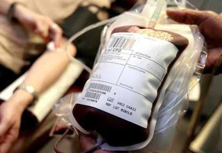 Actualmente, en Escocia una bolsa de sangre (0.568 litros) lista para transfusión cuesta aproximadamente 180 libras (alrededor de 3 mil 500 pesos). (wordpress.com)