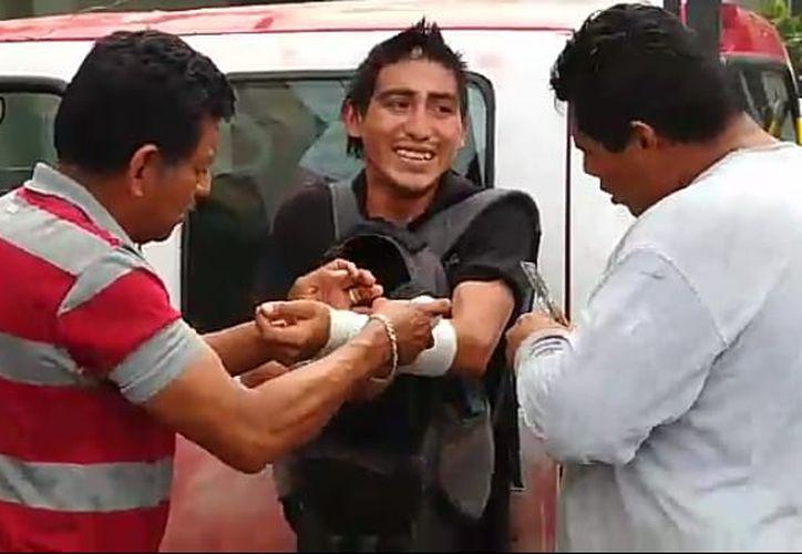 El delincuente sufrió agresión, le lastimaron el brazo. (Foto: SIPSE)